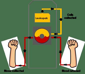 Leukapheresis Process Infographic